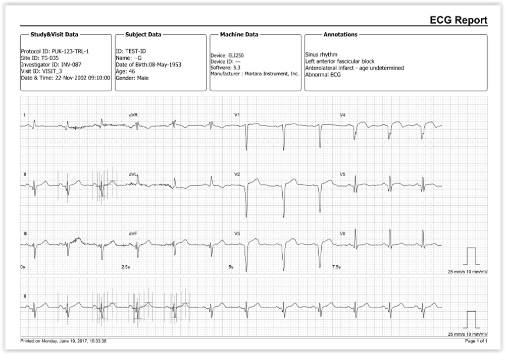 AMPS LLC announces the release of ECGSolve, its new ECG File Processing Software tool