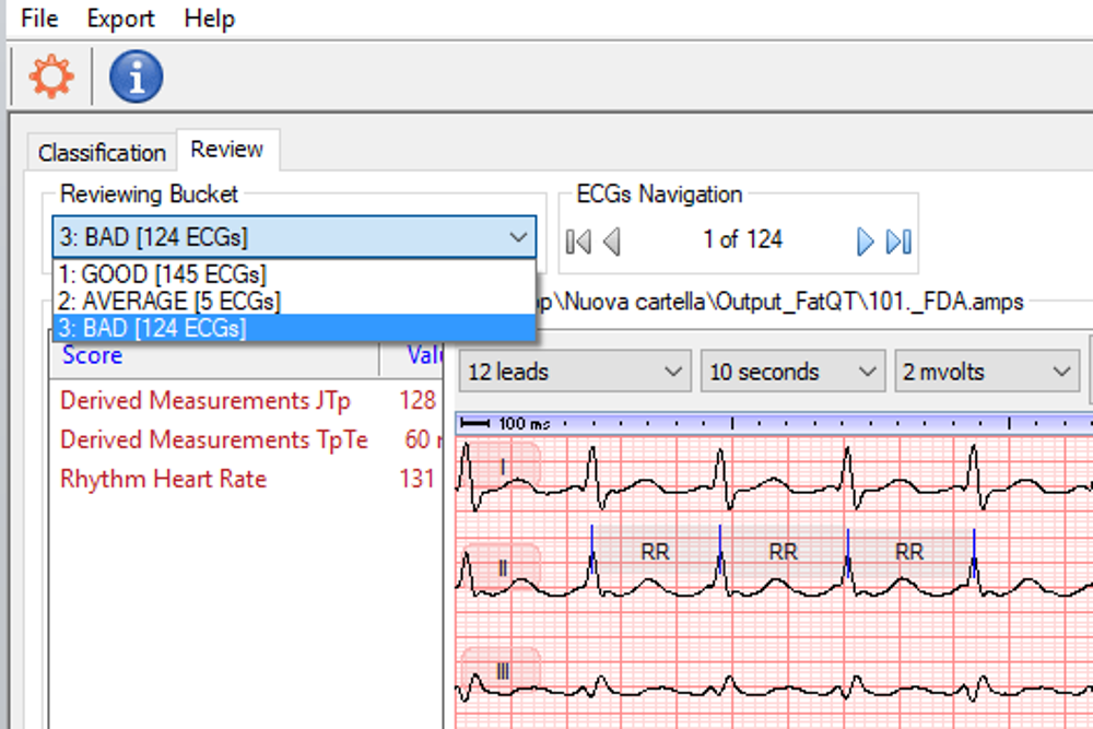 AMPS LLC releases the new version (version 2) of FAT-QT, a tool for fully automated analysis of ECG traces
