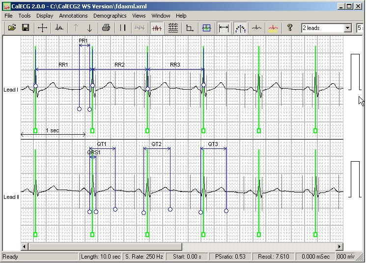 Software Tools for Resting ECG
